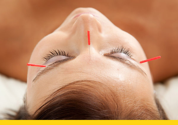 naturheilpraxis-goldes-akupunktur